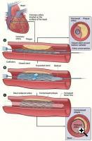 Heart Stent (Credit: US National Heart Blood and lung institute )