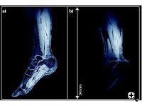 In-vivo traveling-wave MRI of a volunteer's lower leg at 7T (Credit: ETH Zurich)