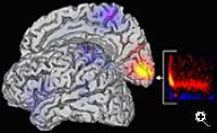 A scan of a volunteer's brain, including a superimposed MEG gamma oscillation activation map (Credit: Cardiff University)
