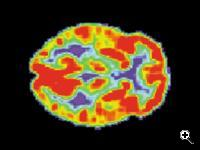 PET scan of a normal brain. (Source: US Department of Health and Human Services, via Wikimedia Commons)