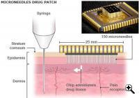 New patch and a common hypodermic needle illustration (Credit: HP)
