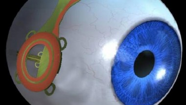 New Bionic Eye Could Restore Sight