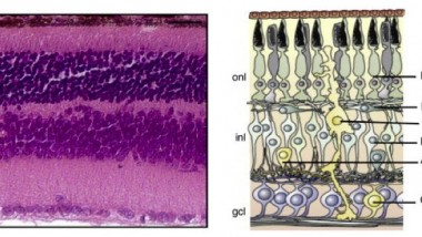 Regenerated Retina Using Neuronal Reprogramming