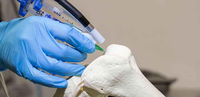 3D printing on the bone